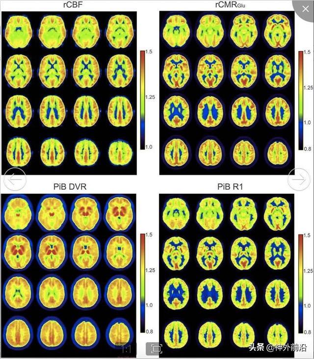 阿尔兹海默症信息有望通过磁共振ASL序列实现测量